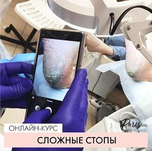 SLOZHNYE-STOPY_01.jpg
