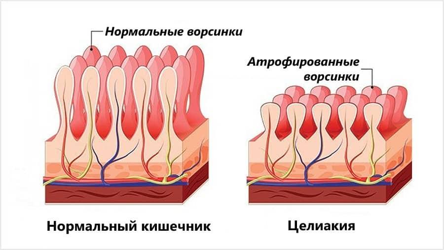 tsialkiya_rus.jpg